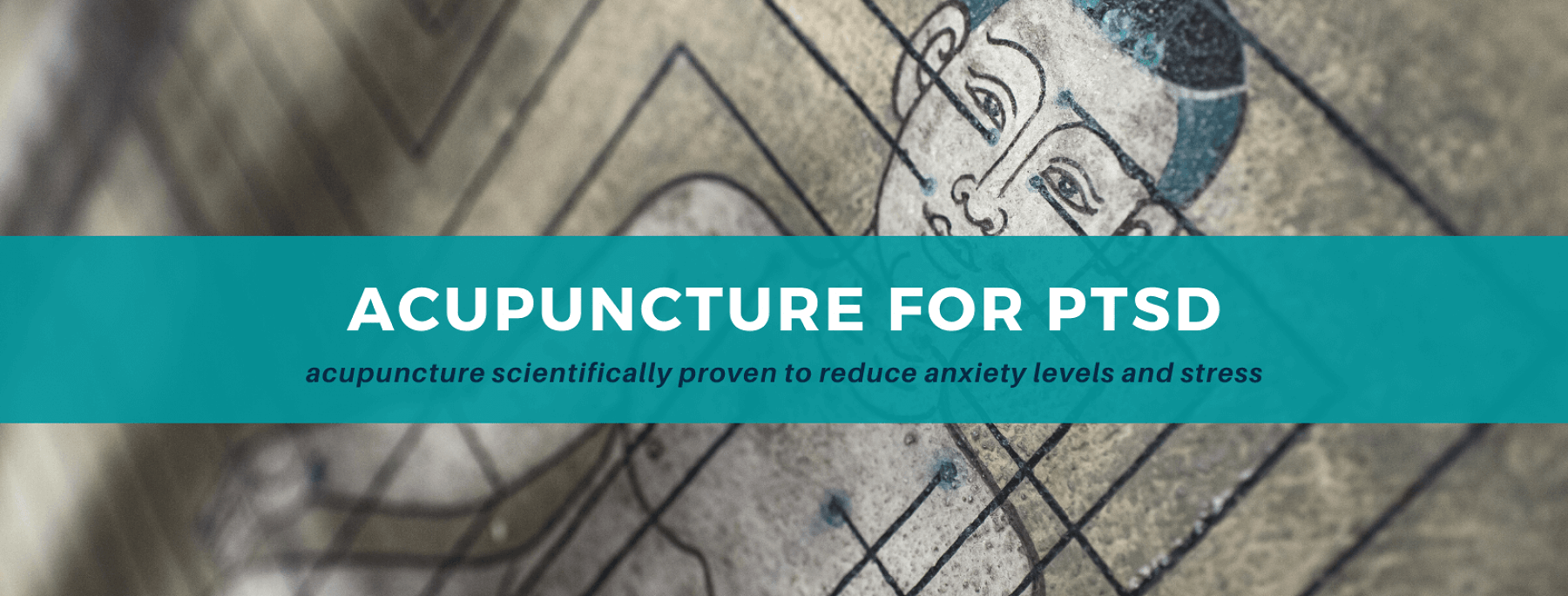 Medical Research Shows Acupuncture Effective for the Treatment of PTSD